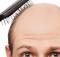 mannen met dun haar